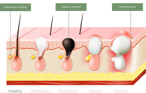 Skin cross section showing hair hair follicles at different stages of Acne and inflammation