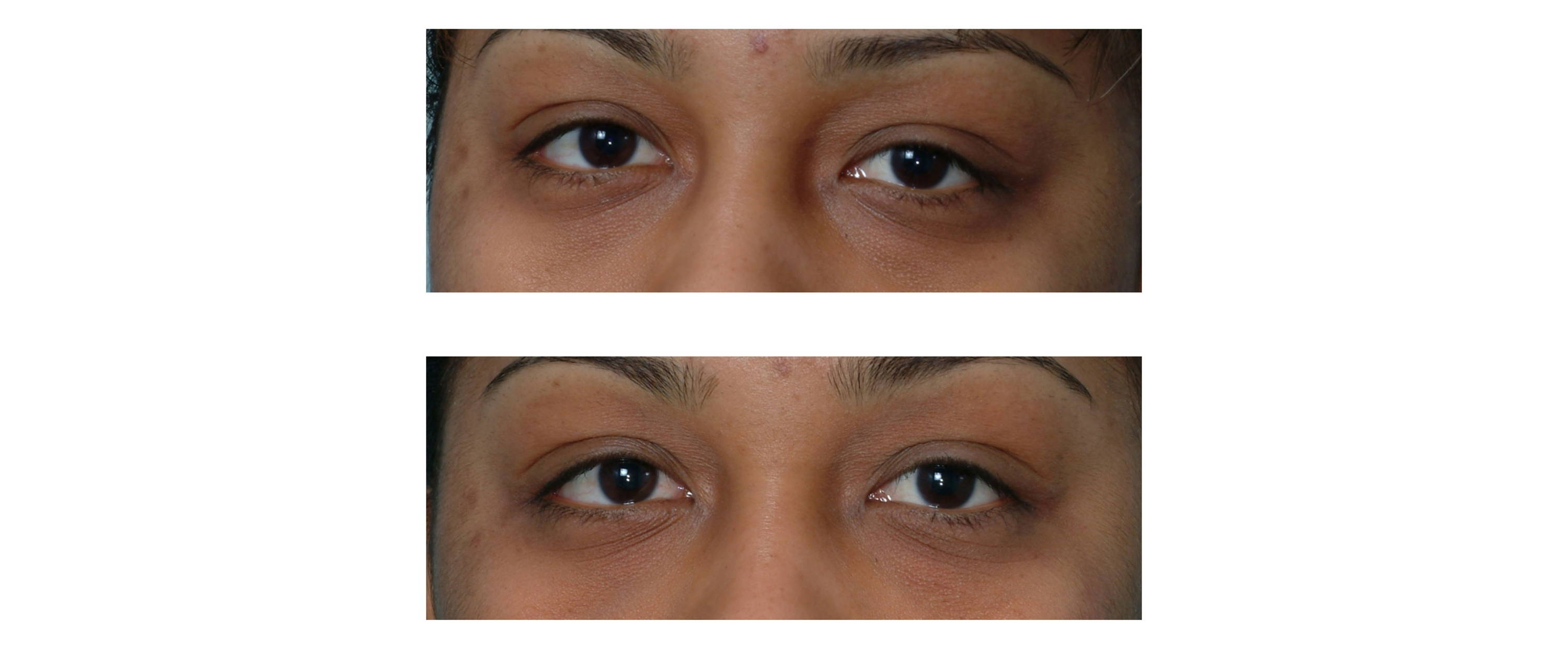 before and after photo of woman under eye after using deppatch under eye sheet mask under eye patch under eye hydrogel
