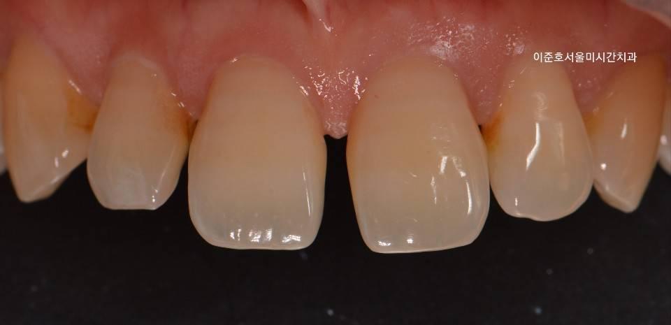 Original photo before treatment
