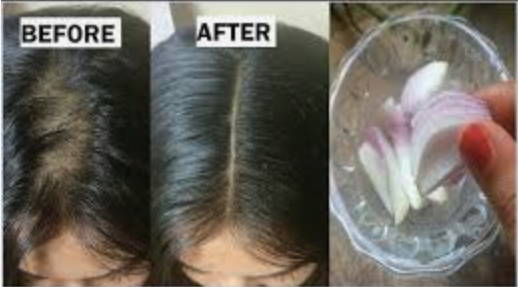 Onion Juice for hair loss pictures