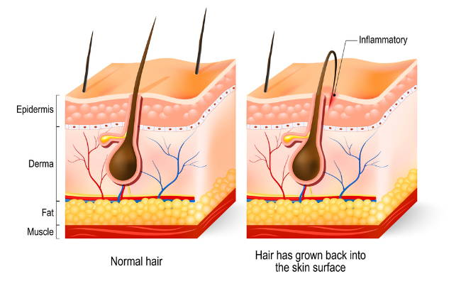 Die Qualen Des Rasierens Eingewachsene Haare Hautirritationen Co