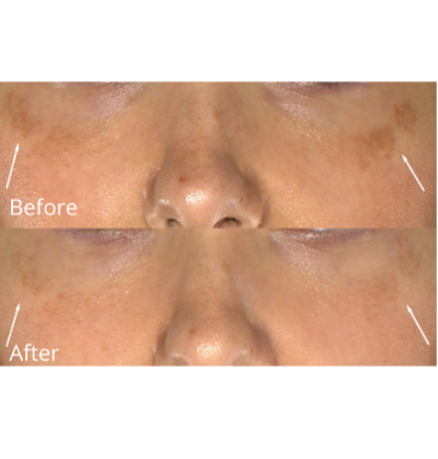 Before and After of Hyperpigmentation on Cheeks Using Skinuva Brite
