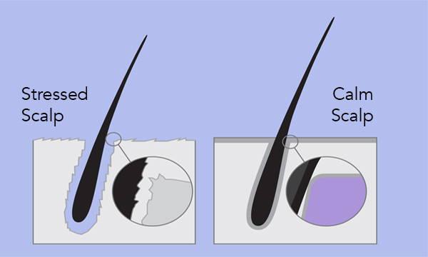 Stressed Scalp vs Calm Scalp