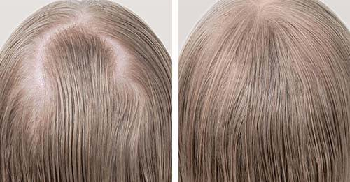 laser hair growth cap results photos before and after