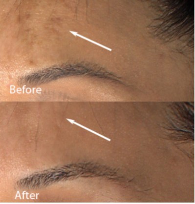 Before and After of Forehead Hyperpigmentation Using Skinuva Brite