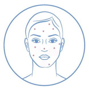 Image of someone with acne