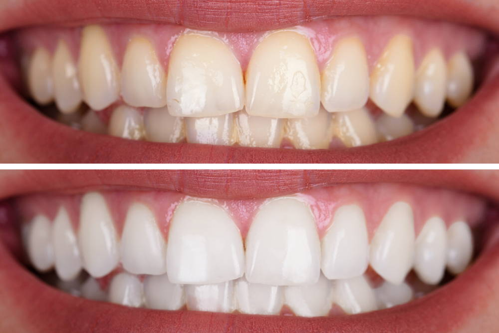 A horizontally split image of two closeup smiles, one with yellowed teeth and one with white teeth