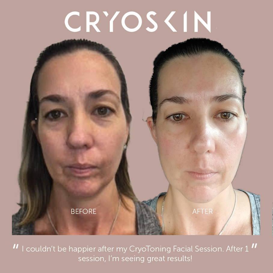 Cryo Lifting Facial – Cryo Nation