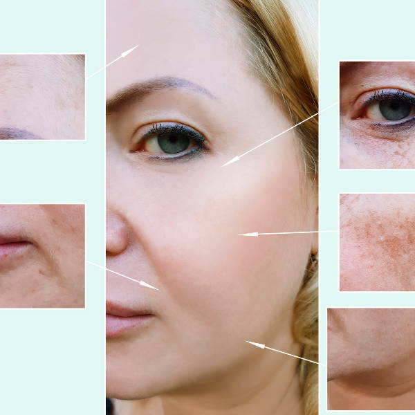 Therasage - Effects of infrared radiation on skin photo-aging and pigmentation. Yonsei medical journal
