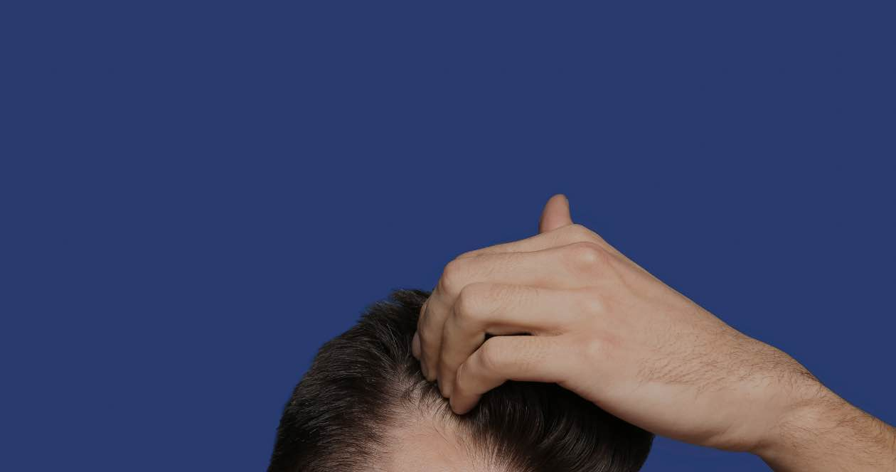 Person looking at hair line wondering about hair loss