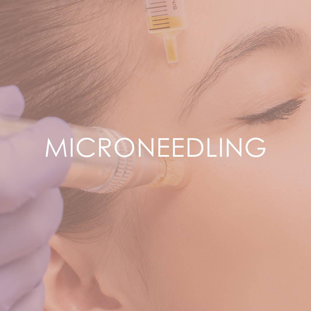 Microneedling at Revita Skin Clinic in Mississauga Canada