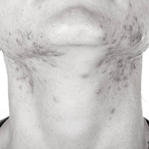 Shaving Acne in The Neck