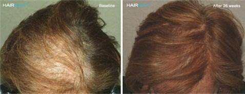 HairMax Treatment Before/After Female 2