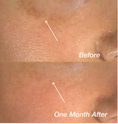 Before and After of Cheek Hyperpigmentation Using Skinuva Brite