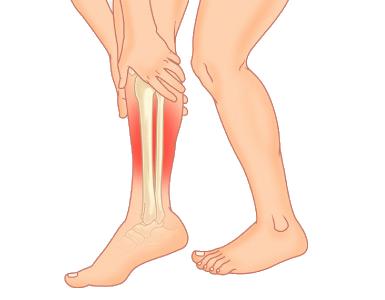 Need To Get Rid of Shin Splints? Premier Foot & Ankle