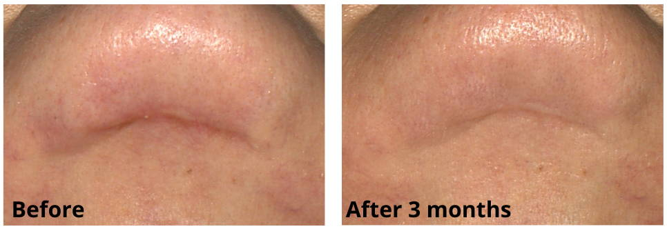 Chin Scar Before and After Using Skinuva Scar for 3 Months