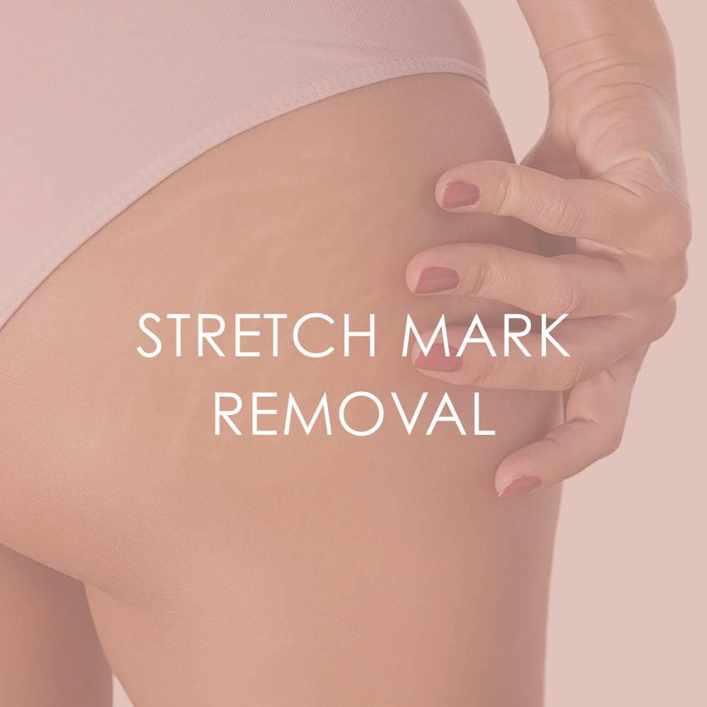 Stretchmark removal Revita Skin Clinic Mississauga