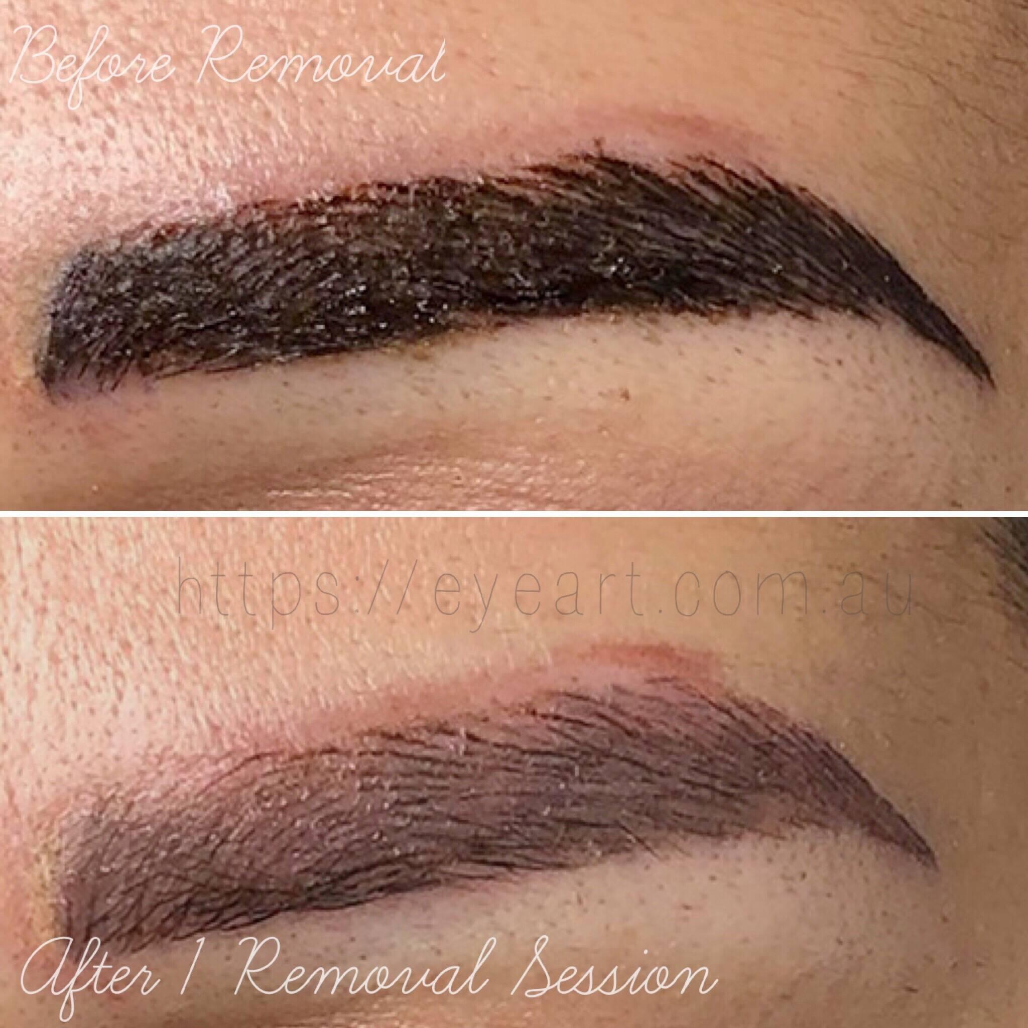Eyebrow Microblading  Removal