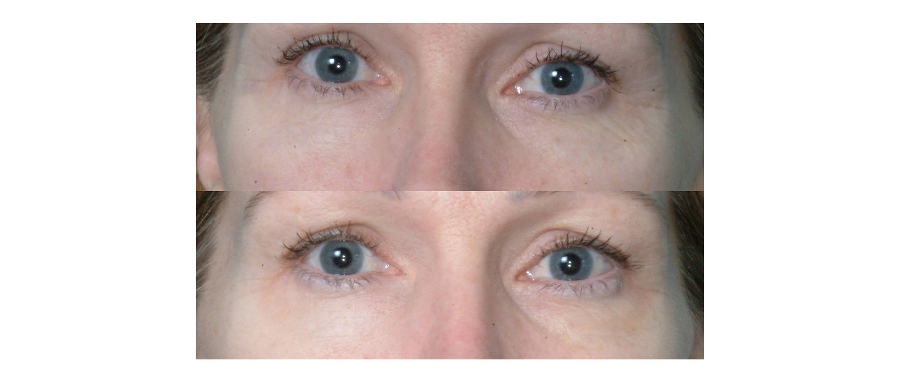woman results with less wrinkles and dark circles after using deppatch