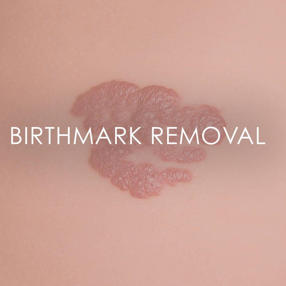 Birthmark Removal at Revita Skin Clinic in Mississauga Canada