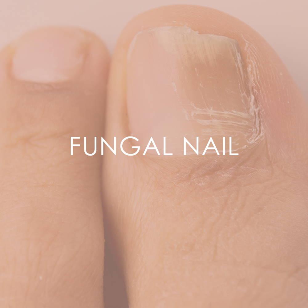 Fungal Nail treatment at Revita Skin Clinic in Mississauga Canada