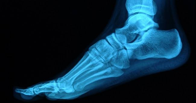 Think You May Have A Stress Fracture? Premier Foot & Ankle Center