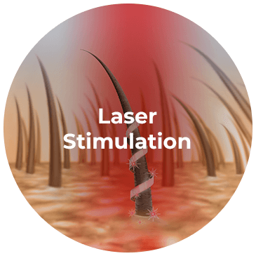 Laser Stimulation