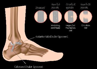 Ankle Sprain Diagram