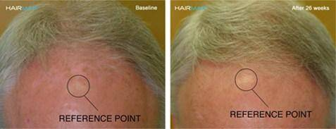 HairMax Treatment Before/After Male 3