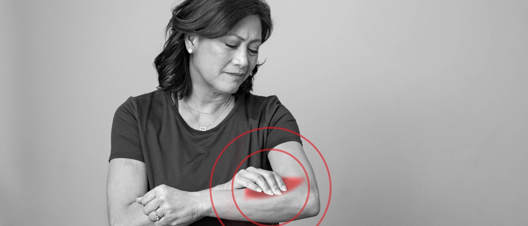 Does CBD help tennis elbow