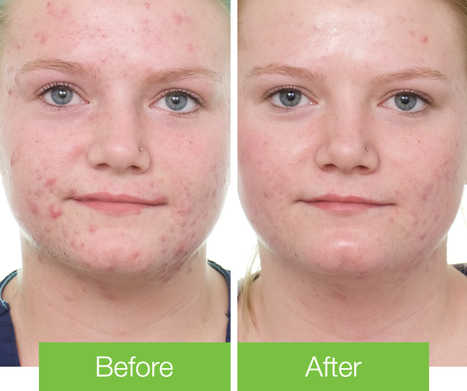 Kasey's Acne Before & After