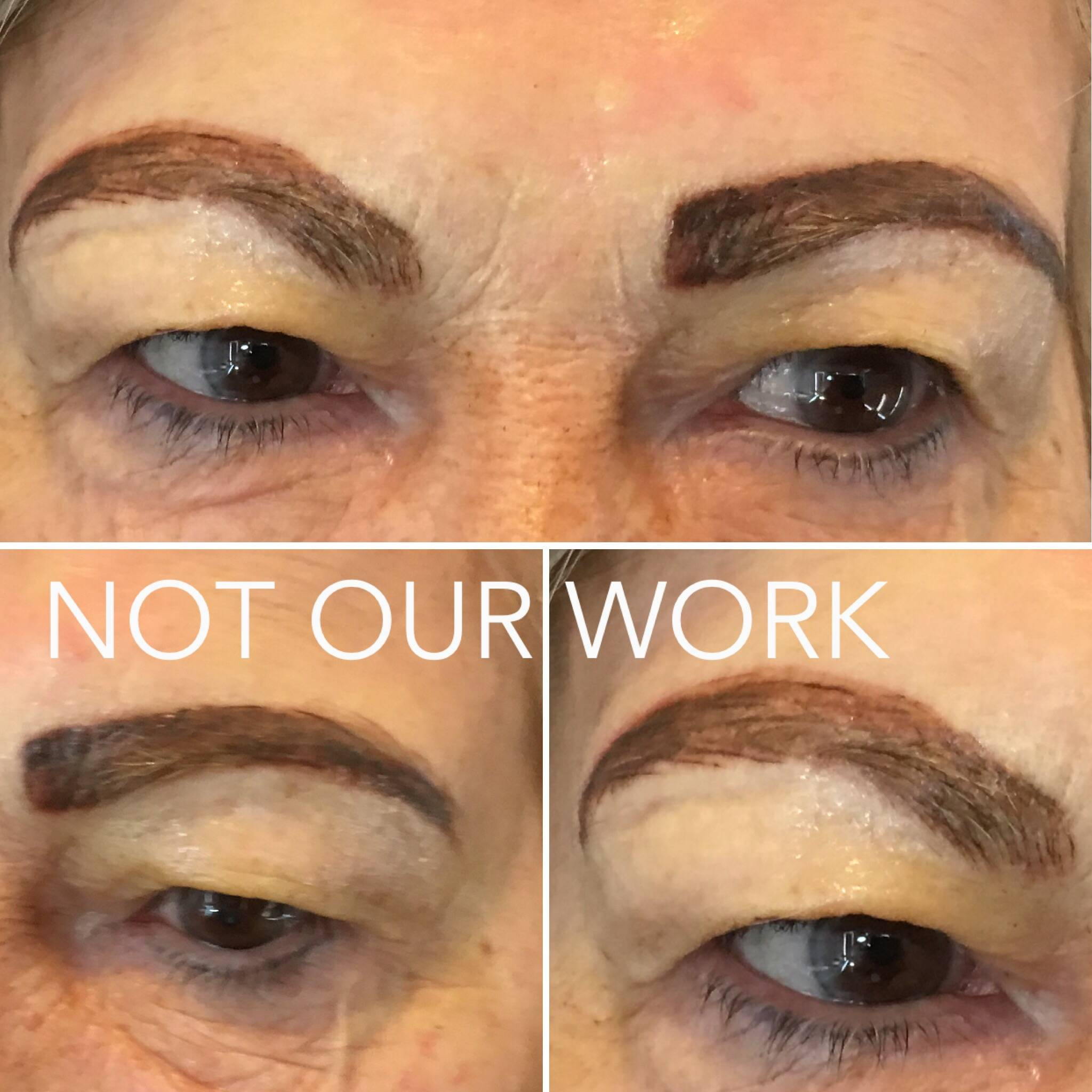 Emergency Eyebrow Tattoo Removal Same Day Eyebrow Tattoo
