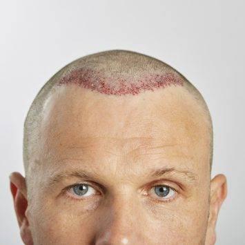 Man After Hair Transplant