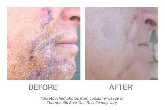 Derma E Scar Gel Before and After Testimonials