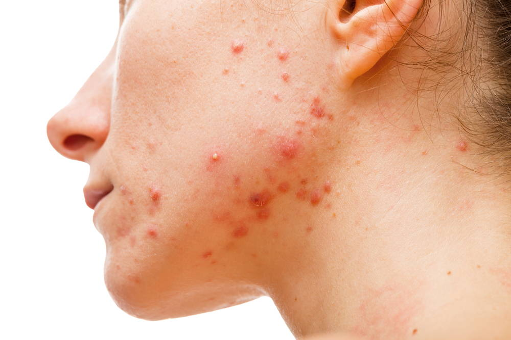 girl-with-acne