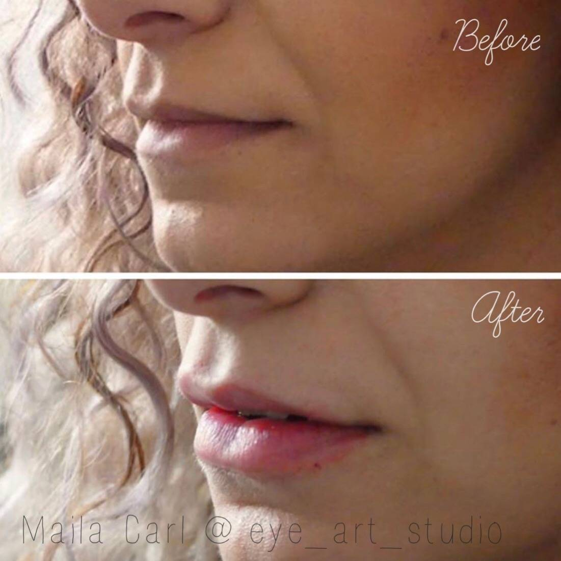 Lip Filler Augmentation