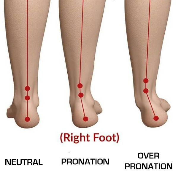 Foot Pronation Explained