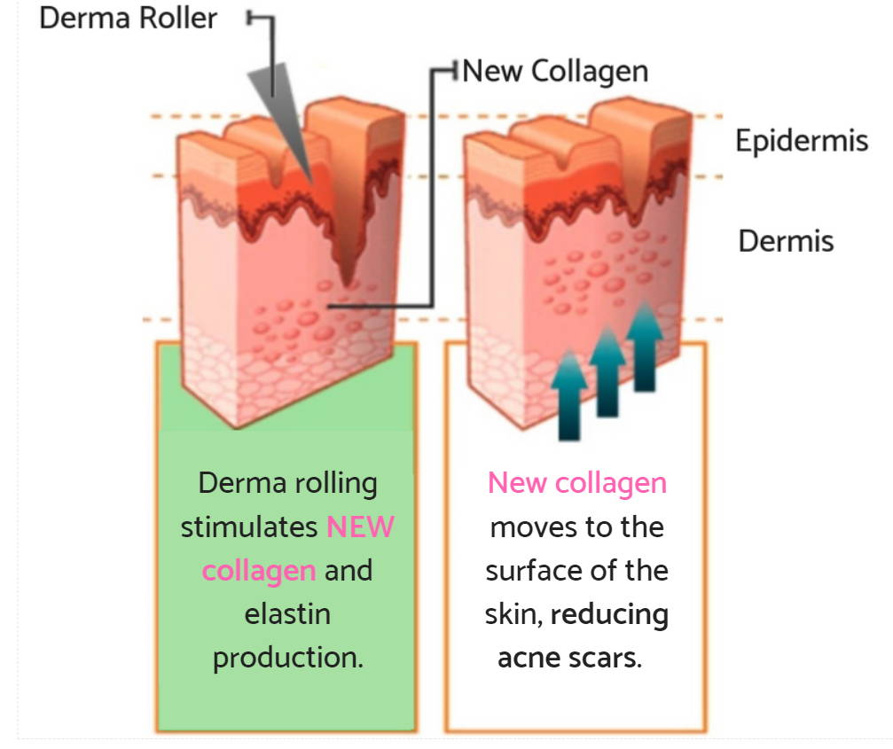 Derma Roller Size for Deep Acne Scars | Micro-needling for Acne Scars -  Rejuviss