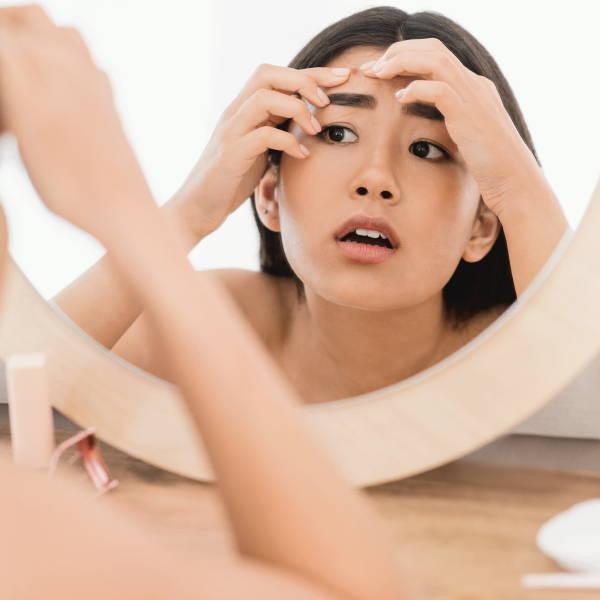Asian woman with a pimple breakout