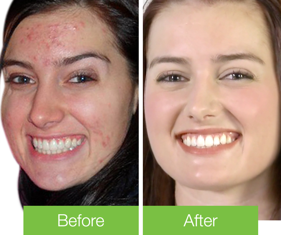 Katie's Acne Before & After