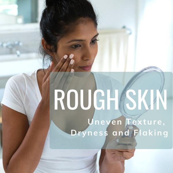 Rough, Uneven Skin