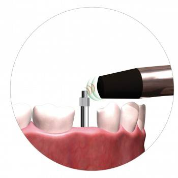 Implant Stability