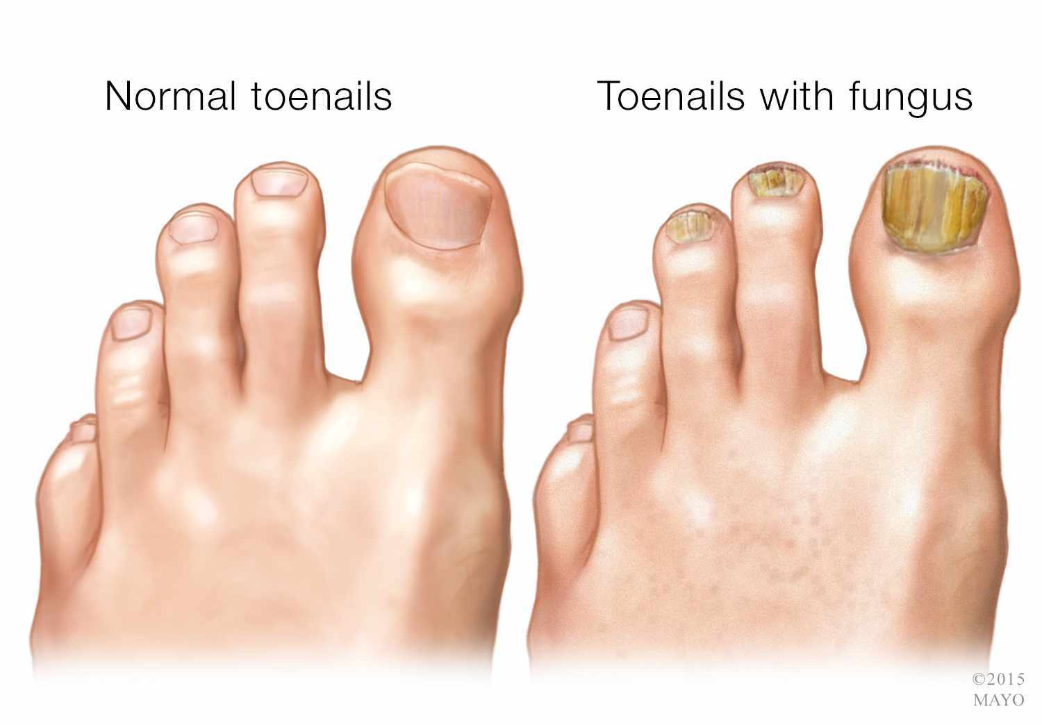 How To Get Rid Of Nail Fungus | Premier Foot & Ankle Center