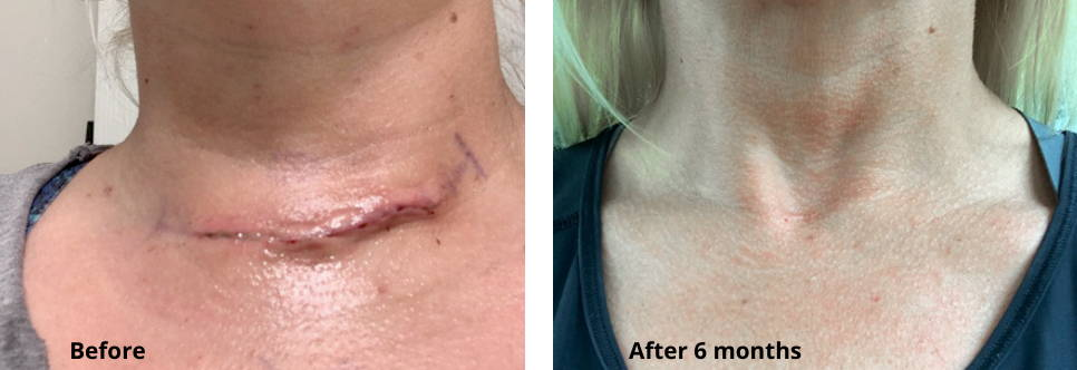 Thyroid Scar Before and After Using Skinuva Scar for 6 Months