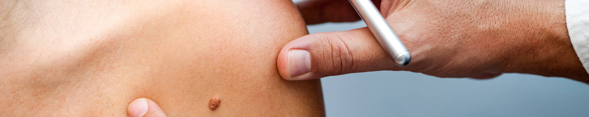 Do You Know The Warning Signs Of Skin Cancer Universal Companies