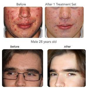 Clearogen customer before and after pictures