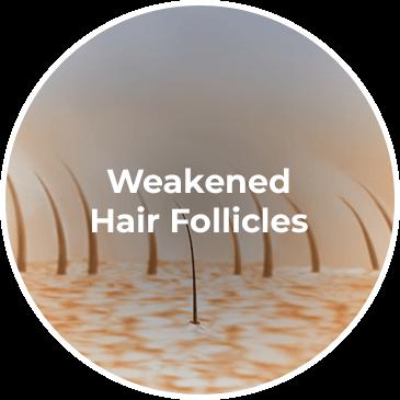 Weakened Hair Follicles