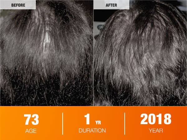 Illumiflow Laser Cap Before and After Photos_ Low Level Laser Therapy Results_Women Age 73 2018