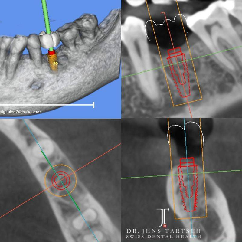 Diagnostic 3D treatment planning: Implant dimension & position with SMOP guided surgery system