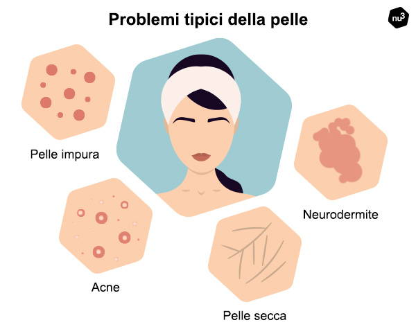 Problemi tipici della pelle